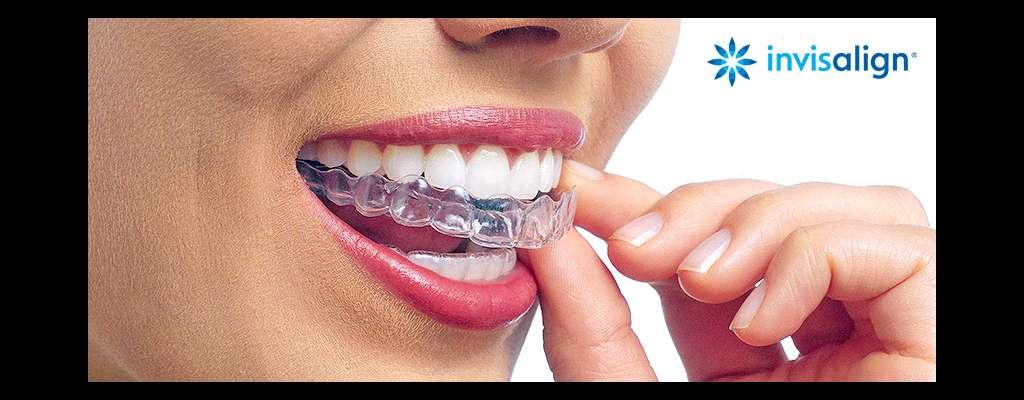 Invisalign - nevidljivi aparatić za zube