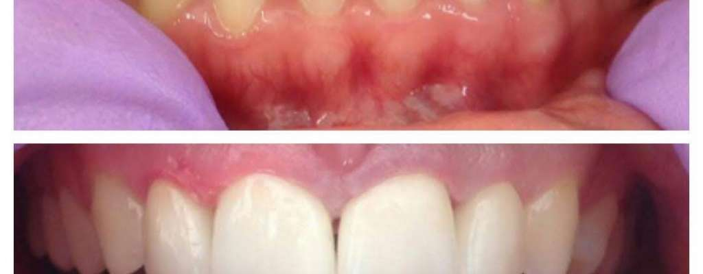 Kako se riješiti razmaka među zubima?